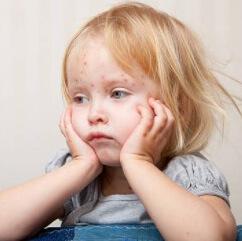 Девочка с патологическими изменениями кожи на лбу