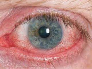 Изменение глазного давления и радужки