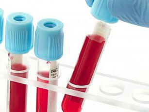 Пробирки с кровяным содержимым