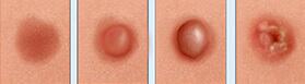 Разновидности и их проявления на коже
