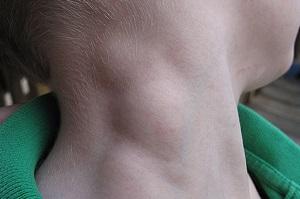 Причины воспалительного процесса в лимфоузлах при ветрянке